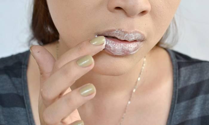 Герпес на губе. лечение в домашних условиях народными средствами, зубной пастой, перекисью водорода, прополисом. мази, препараты в таблетках, пластырь
