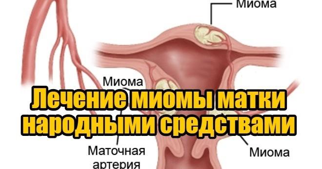 Варианты лечения миомы матки без операции