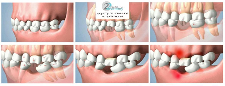 8 проблем со здоровьем, которые может вызвать отсутствие зубов