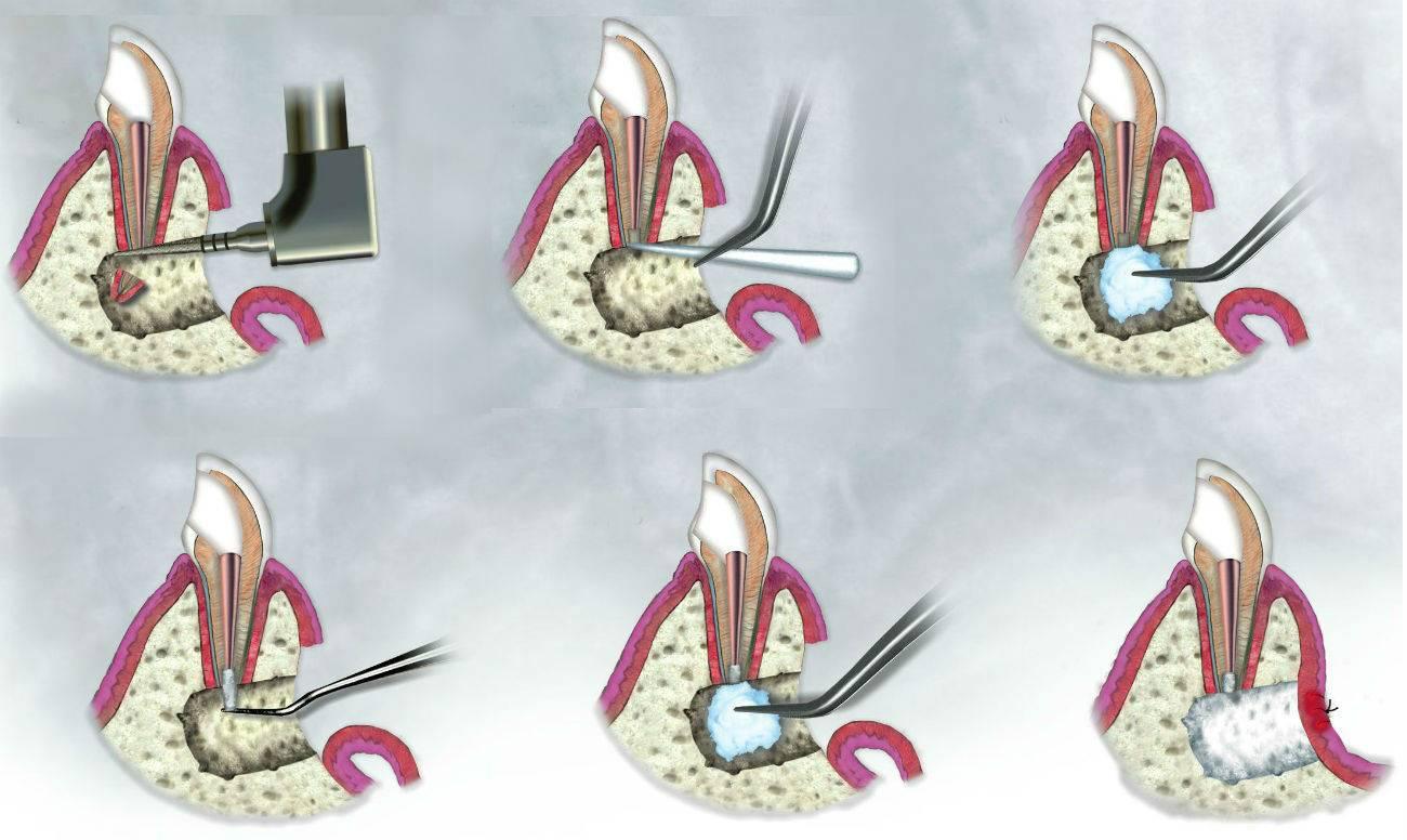 Что такое резекция верхушки корня зуба