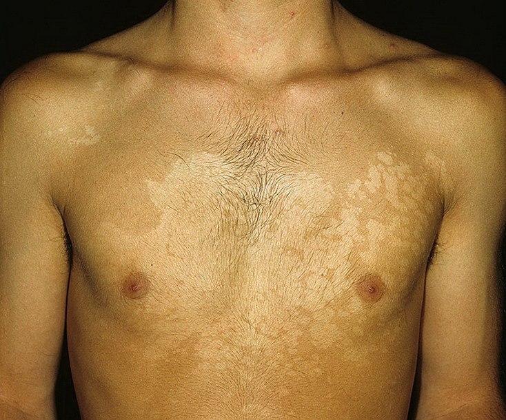 Лишай на лице — виды, причины, симптомы, лечение и профилактика. 115 фото и видео проявления болезни