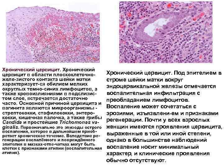 Причины и лечение хронического цервицита