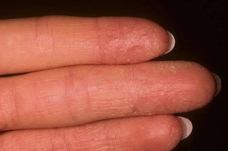 Шелушение кожи на пальцах рук: причины и способы лечения