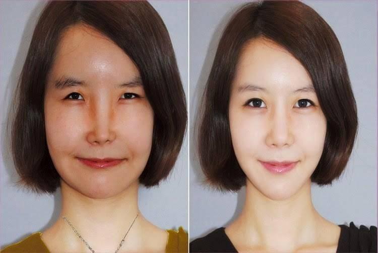 Какие может решить проблемы операция по увеличению глаз?