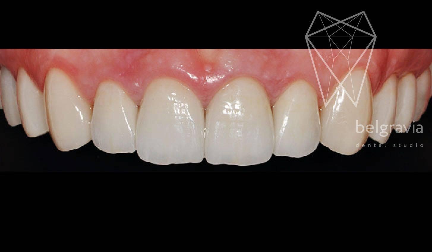 Что лучше — металлокерамика или диоксид циркония? материалы для стоматологии