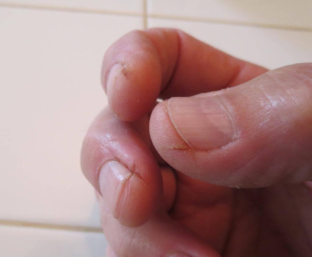 Шелушится и трескается кожа на руках и теле: причины и лечение