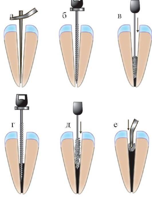 Стоматология: ошибки и осложнения в эндодонтии