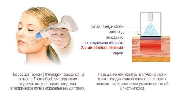Термаж. процедура термаж. показания и противопоказания к процедуре термаж