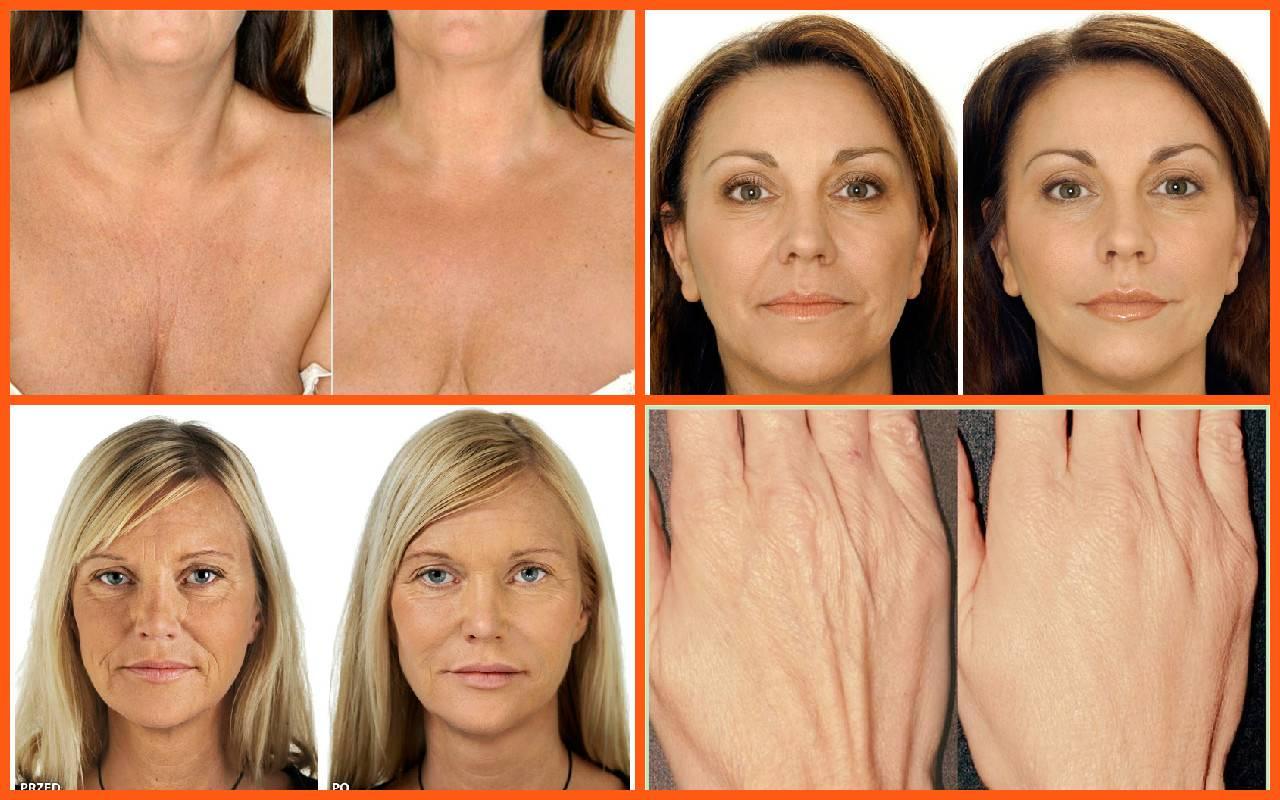 Отзывы на мезотерапию лица с фото до и после