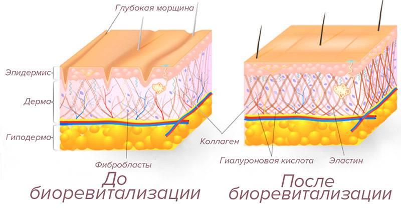 Вредна ли гиалуроновая кислота для лица