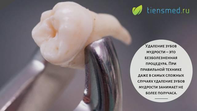 Когда нет сил терпеть: почему болит голова после удаления зуба мудрости?