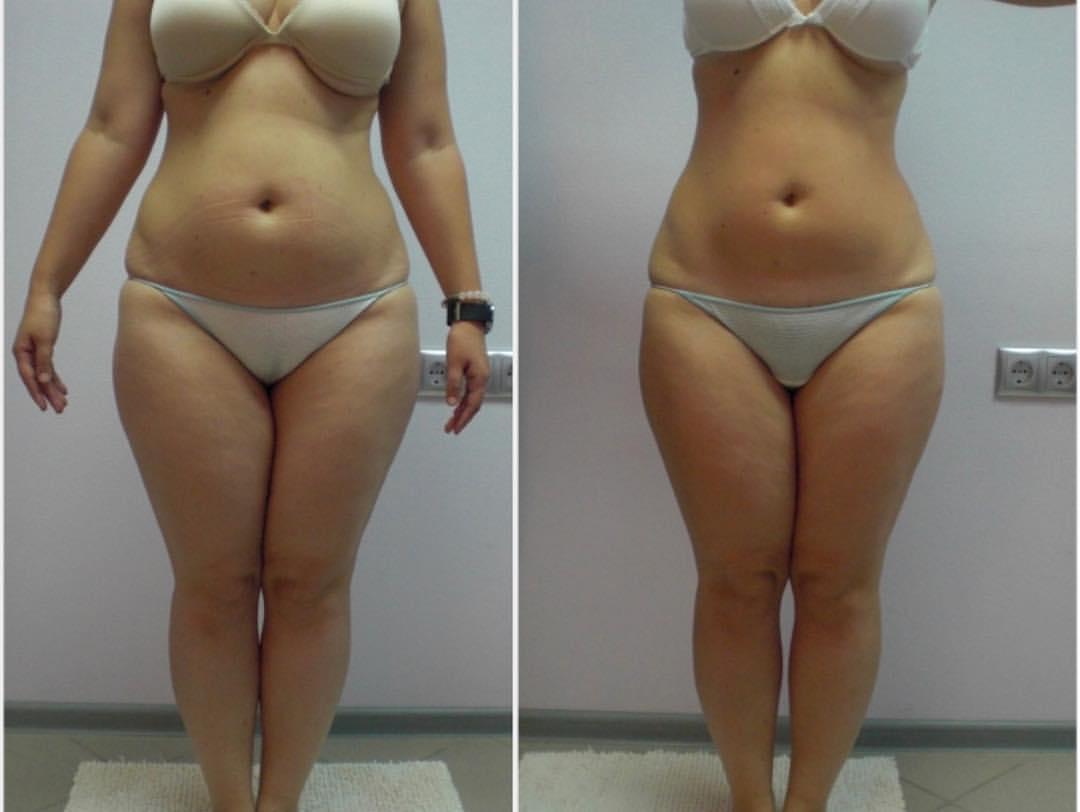 Кавитация для похудения – как выполняется процедура