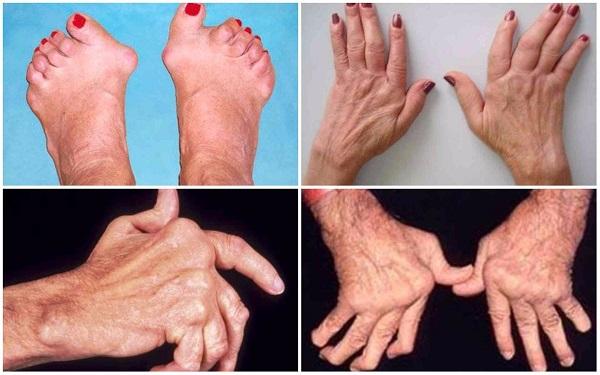 ревматоидный артрит картинки