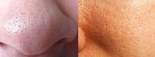 Маска для пористой кожи лица: домашние рецепты или готовые средства?