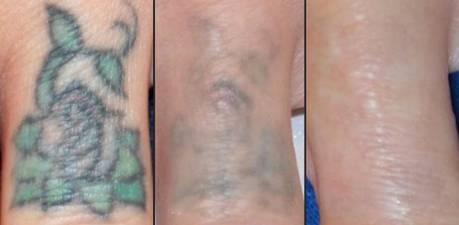 Как удалить татуировку лазером