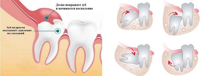 Сколько будет болеть десна если е разрезали для роста зуба мудрости возможные осложнения
