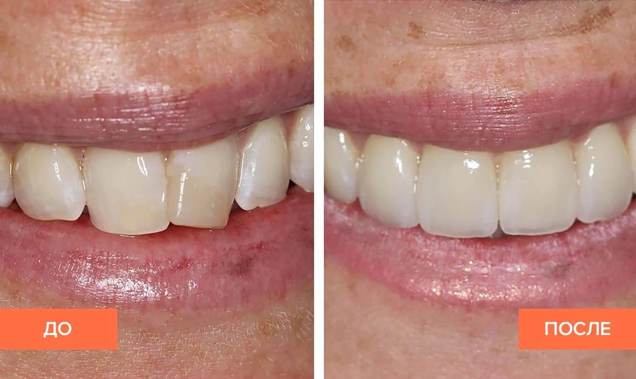 Кардинальное решение проблемы: как зубной мост и другие протезы исправляют неправильный прикус?