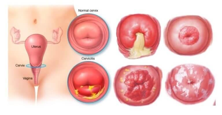 Какими симптомами может проявлять себя эрозия шейки матки