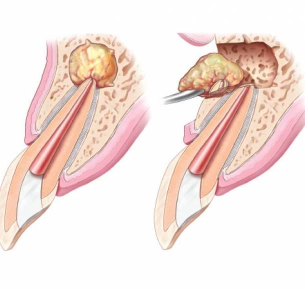 Что такое киста и кистогранулема зуба? виды, симптомы, методы лечения