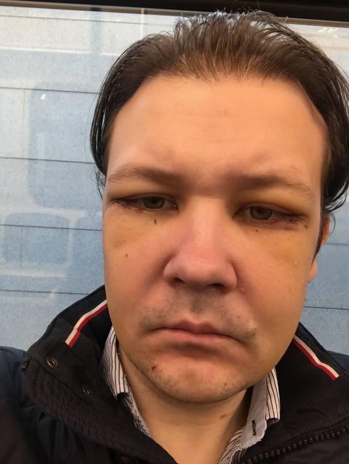 Как долго сходит отек после операции. отек после операции на лице: причины появления и степени отечности