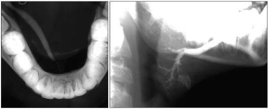 Удаление камней из слюнной железы без операции