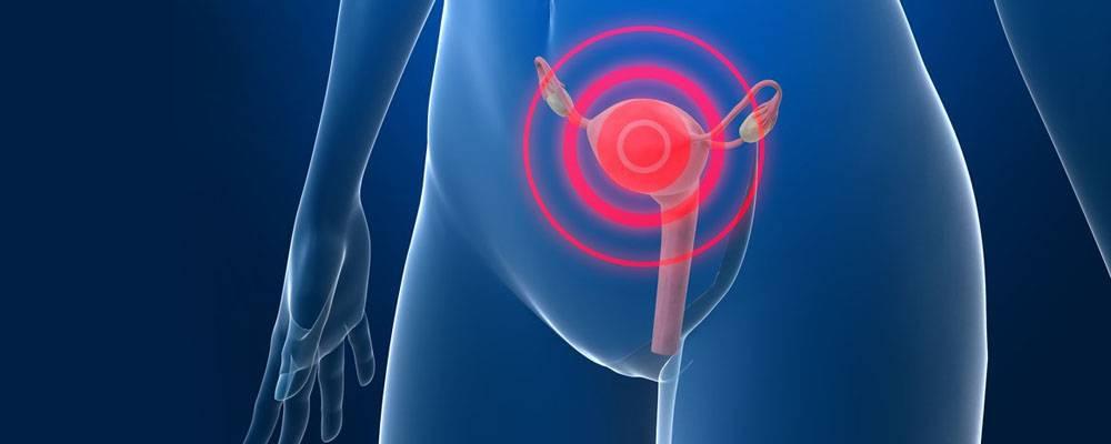 Плоскоклеточный рак шейки матки: описание заболевания, лечение и профилактика