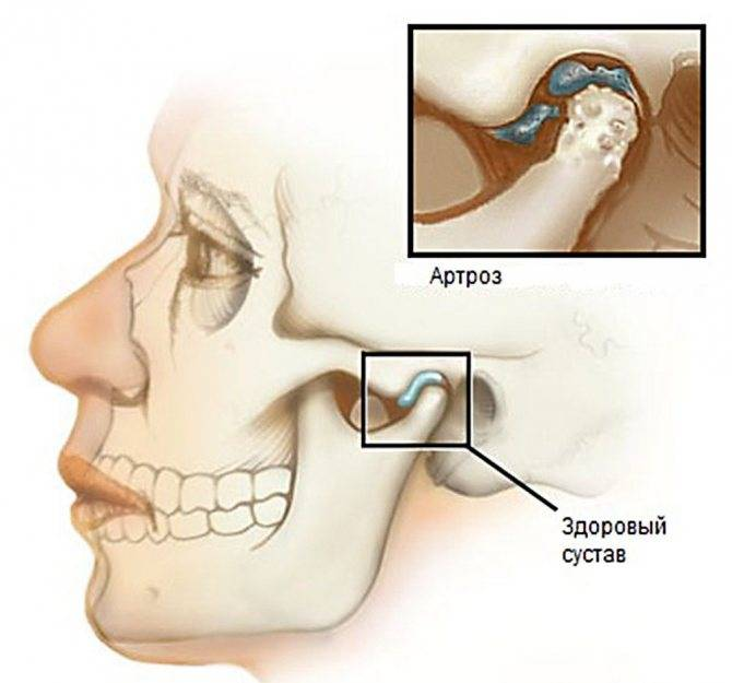 Воспаление челюстного сустава
