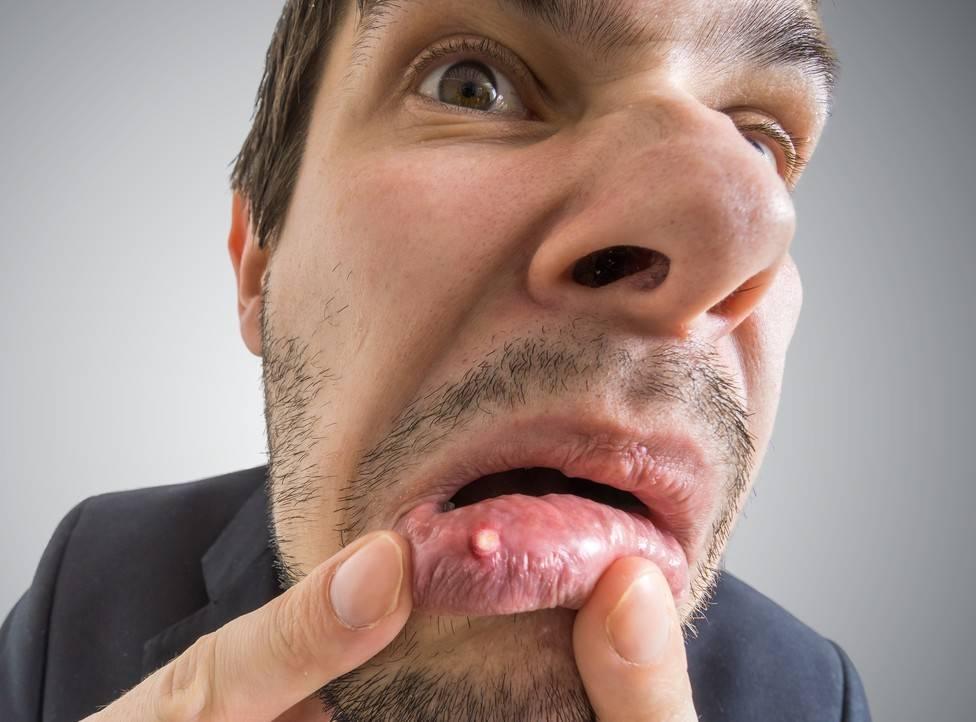 Во рту на щеке черное пятно
