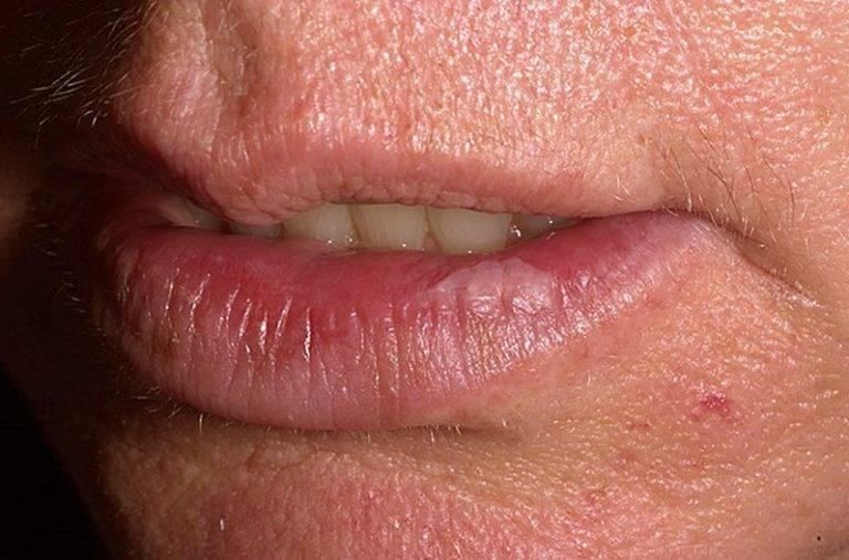 Кандидоз полости рта: причины, симптомы и признаки (фото), лечение
