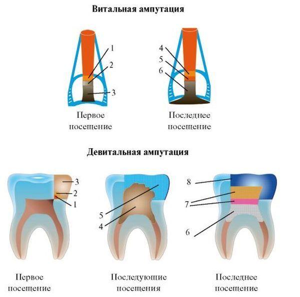 Гемисекция зуба – что это такое, и в каком случае назначается