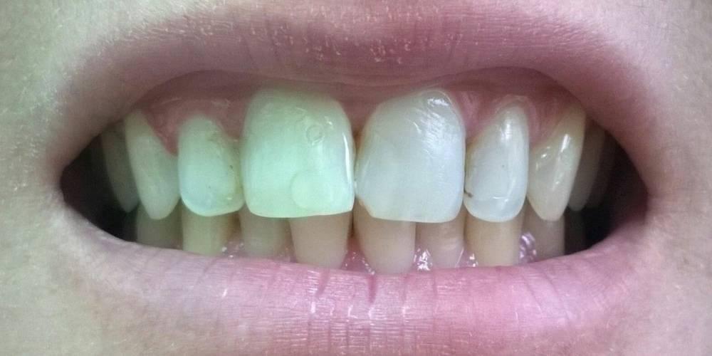 Шатается зуб: почему так происходит и чем укрепить