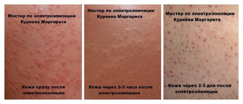 Уход за кожей после электроэпиляции: какие могут быть последствия?