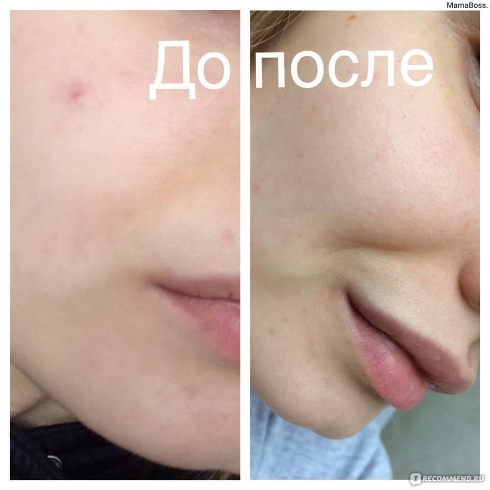 Лечение купероза на лице современными методами: лазером, элос и фотовспышкой