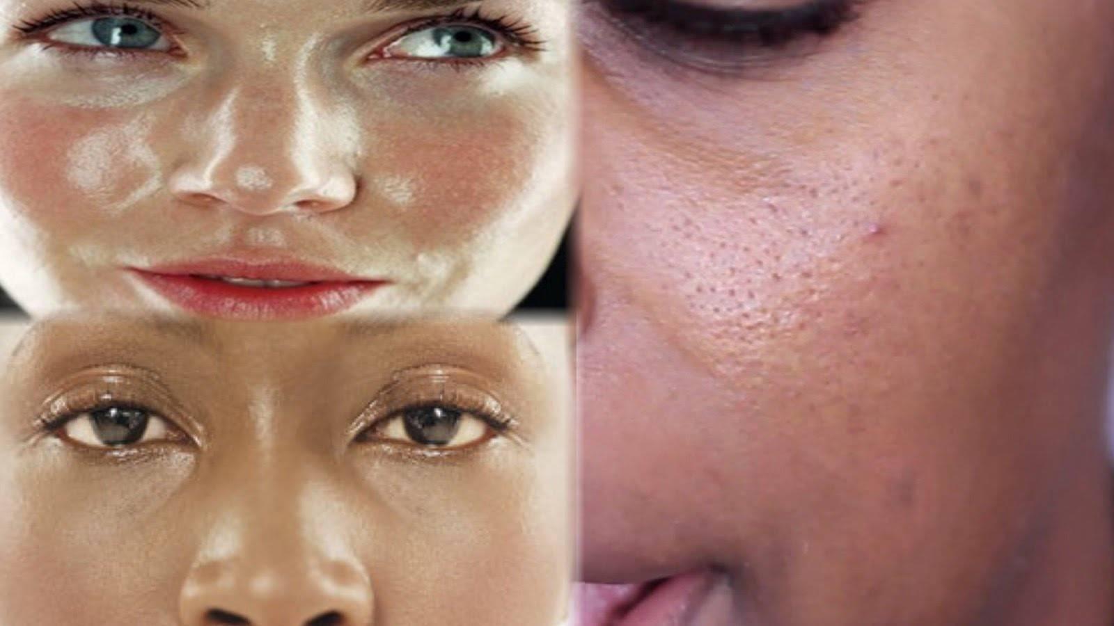 Как избавиться от жирного блеска на лице: причины и решение проблемы. как убрать жирный блеск на лице