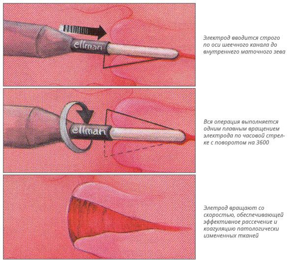 Криотерапия при патологиях шейки матки (в том числе при эрозии)