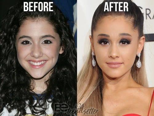 Анджелина джоли до и после пластики