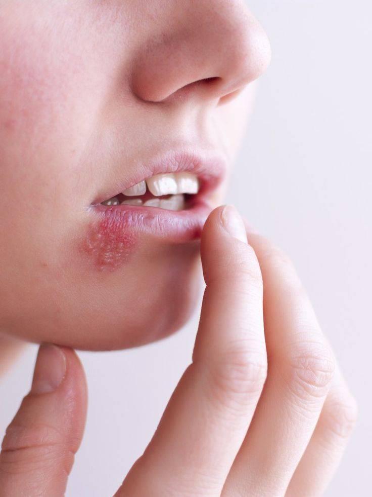 Язва на губе: причины появления и методы лечения