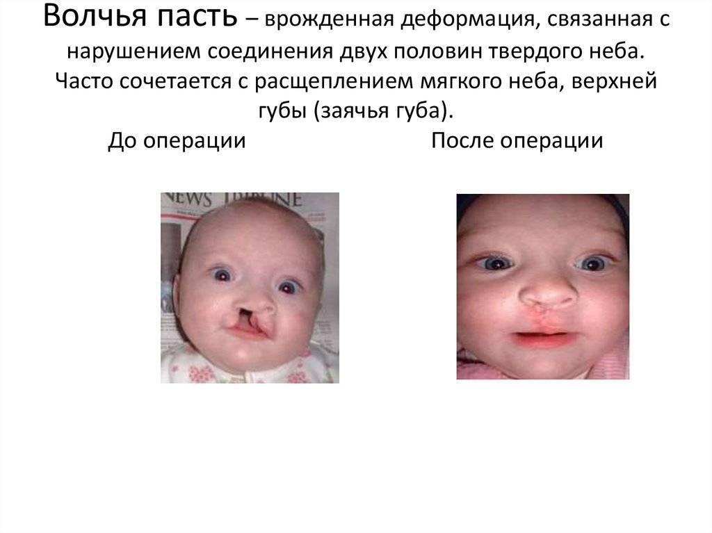 Врождённая расщелина верхней губы и нёба