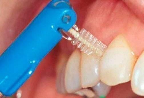 Как происходит чистка имплантов у стоматолога?
