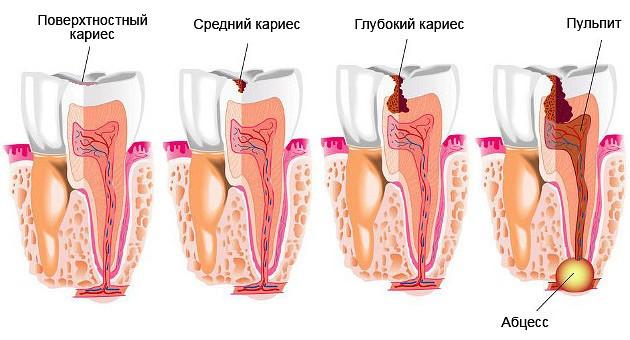 Периодонтит зуба – что это такое и как его лечить