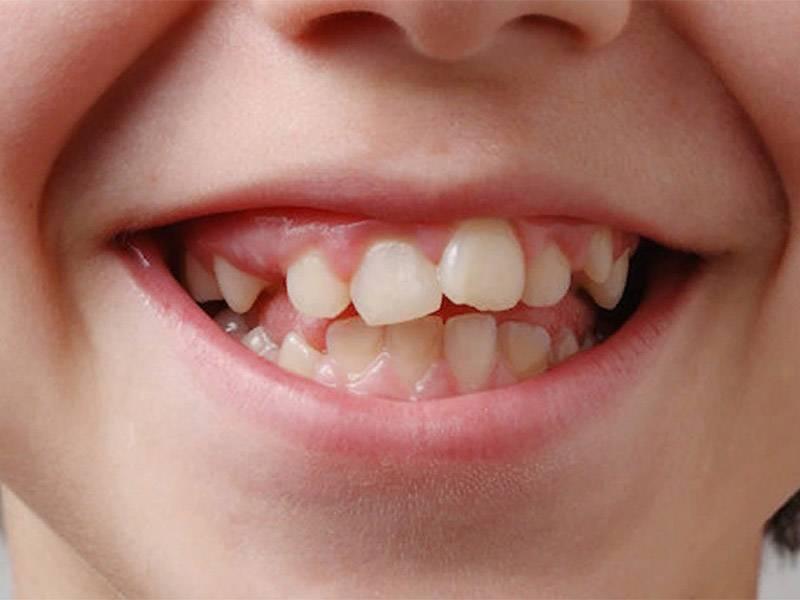 Смена молочных зубов у детей на постоянные: сроки и схема