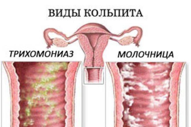 Хронический вагинит: причины, виды и методы лечения.