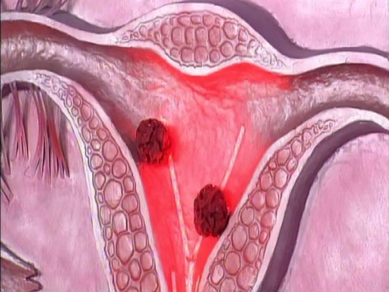 Рак матки 4 стадия, каковы шансы на излечение?