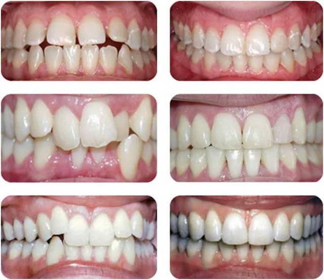 Этапы лечения брекетами или получение идеальной улыбки от а до я