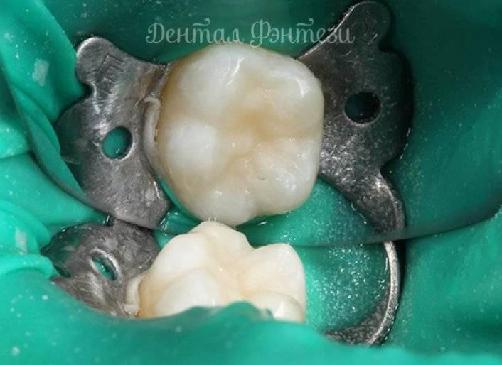 Лечение пульпита у детей, пульпит молочных и постоянных зубов