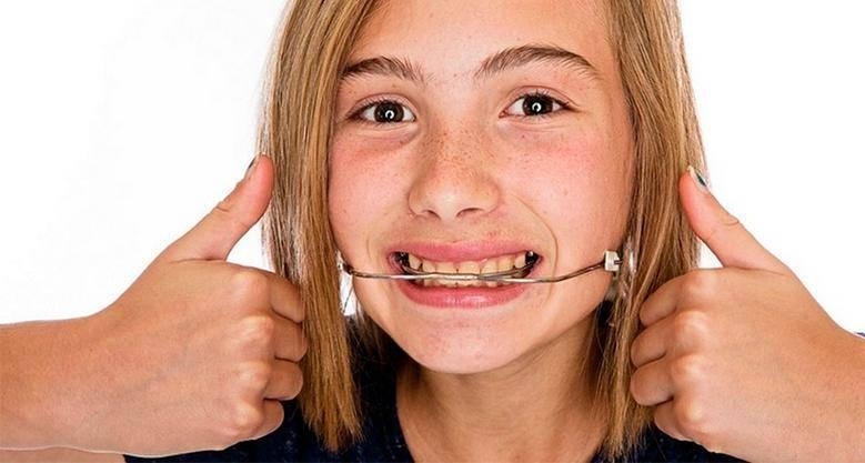 Установка моделей челюстей в артикуляторе с использованием лицевлй дуги. лицевая дуга в стоматологии: особенности и применение устройство лицевой дуги и ее предназначение
