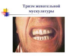 Как вылечить тризм челюсти