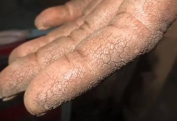 Почему сохнет и трескается кожа на руках?