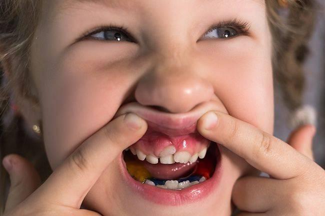 Что делать, если у ребенка растет второй ряд зубов