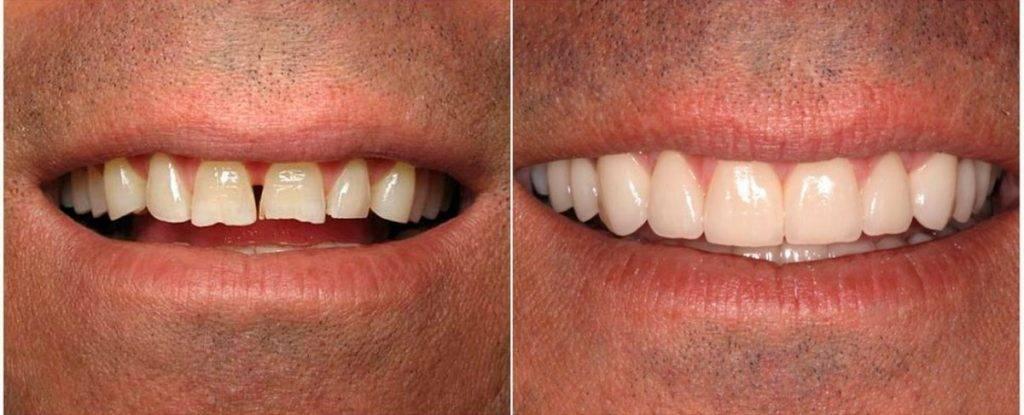 Определение повышенной стираемости зубов среди молодых людей